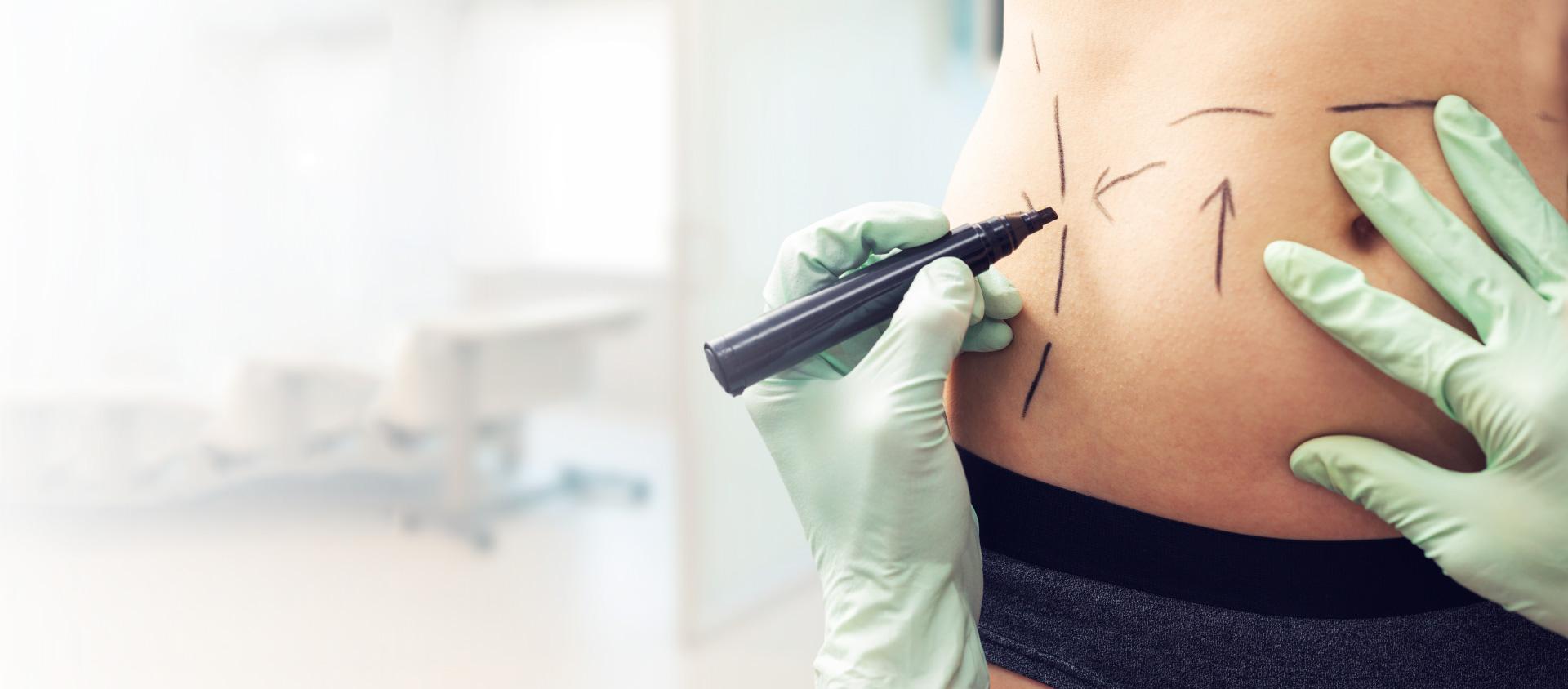 Cirurgia plástica: plano de saúde é obrigado a cumprir?